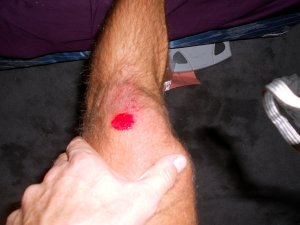 running road rash